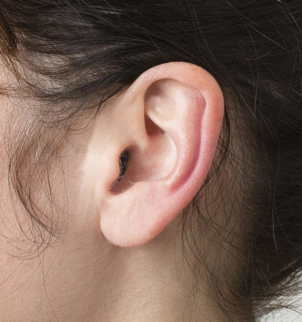 invisible in the canal hearing aid